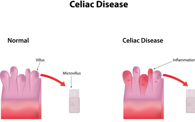 celiac disease and FM