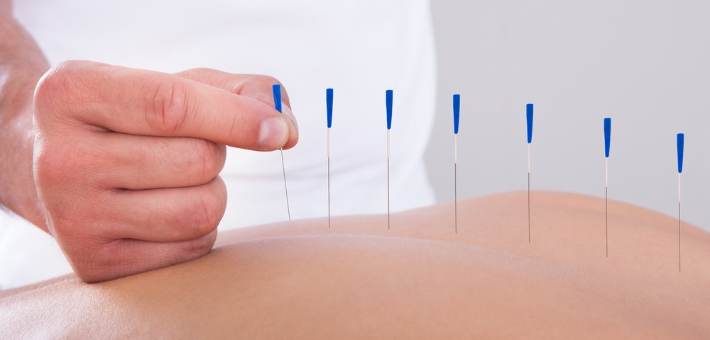 Acupuncture Does Not Appear to Relieve Pain in Fibromyalgia Patients
