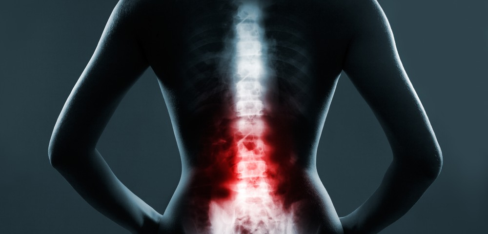 Fibromyalgia Patients Often Show Positional Cervical Cord Compression