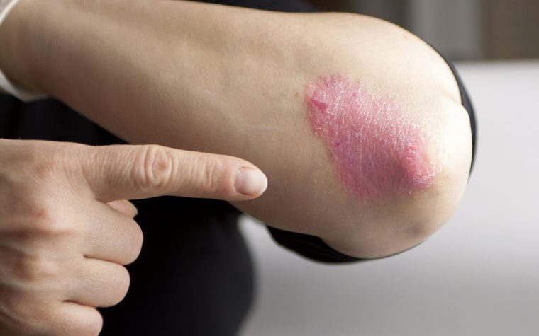 Patients with fibromyalgia and psoriatic arthritis do worse clinically