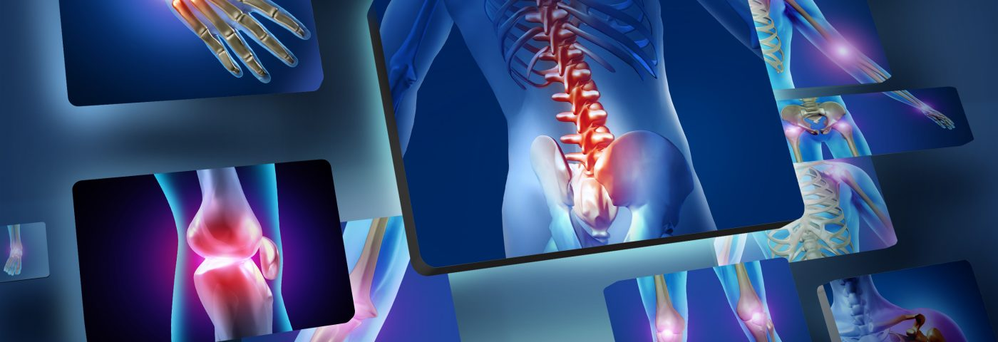 Fibromyalgia May Cause Doctors to Overestimate Severity of Spondyloarthritis