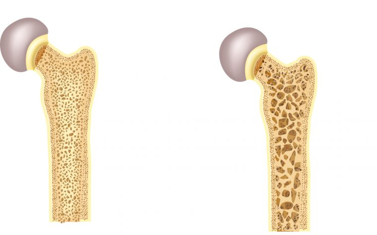 Fibromyalgia Patients May Be at Risk of Developing Osteoporosis, Study Suggests