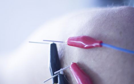 Electroacupuncture Treatment Appears to Reduce Fibromyalgia Pain, Review Shows