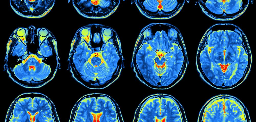 Brain Changes May Explain Chronic Pain Symptoms in Different Disorders, Study Suggests